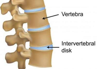 Spine graphic healthy